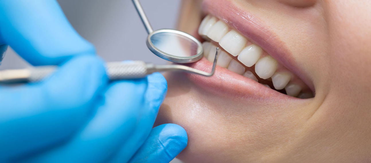Things to Look For in Family Dental Plans